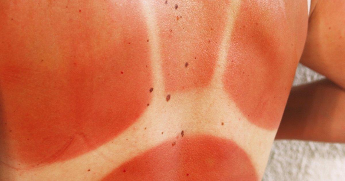 4 Dicas Para Tratar Naturalmente As Queimaduras De Sol Tua Saude