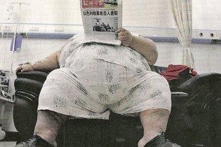 Adulto com obesidade mórbida