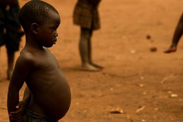 O que é a desnutrição do tipo Kwashiorkor