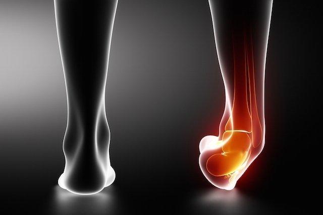 Como tratar a entorse (luxação) do tornozelo em casa
