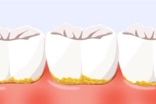 Como retirar o tártaro dos dentes