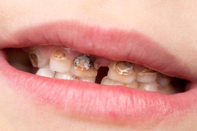Como tratar a hipoplasia do esmalte dentário