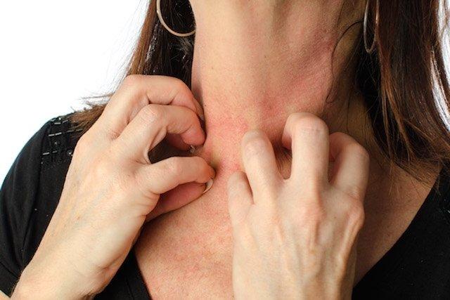 Quais são os sintomas que indicam dermatite atópica