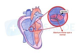 3. Defeito na abertura da artéria