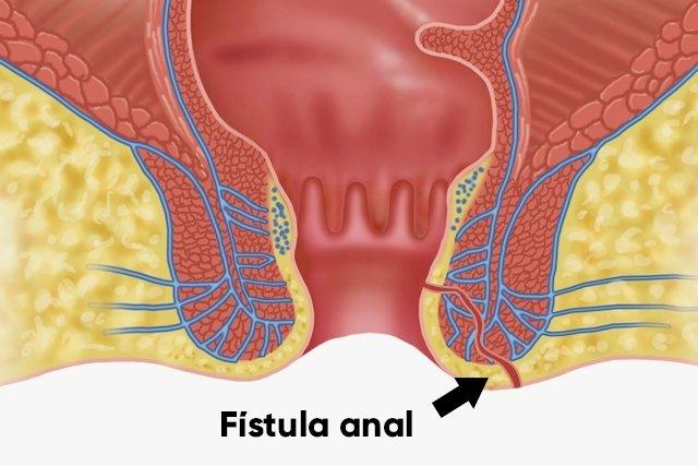 Fístula anal/perianal: o que é, sintomas e quando fazer cirurgia