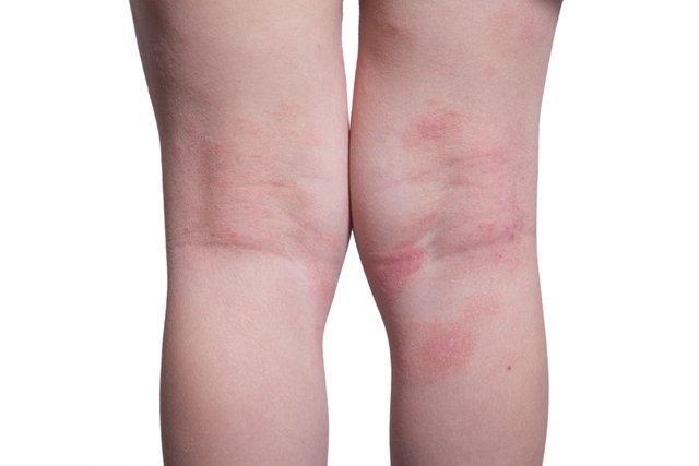 dores nas pernas e diabetes