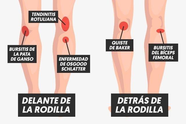 Dolor de rodilla: Qué puede causarlo y cómo tratar