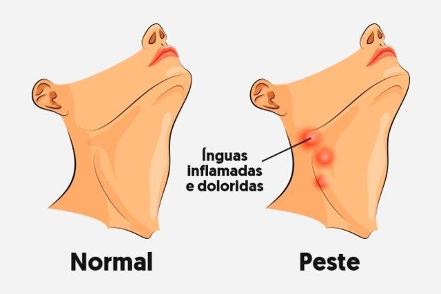 Peste negra: o que é, sintomas, transmissão e tratamento