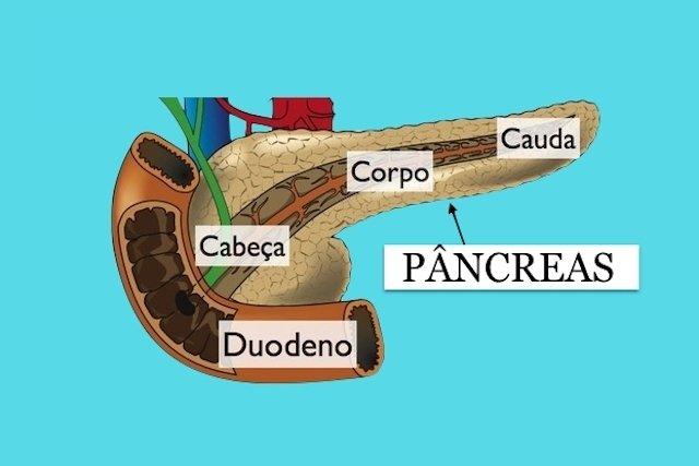 Cirurgia para Câncer de Pâncreas