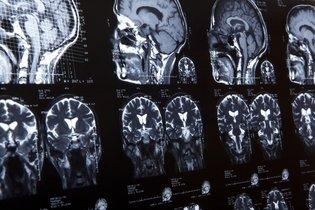 Tomografia computadorizada do crânio