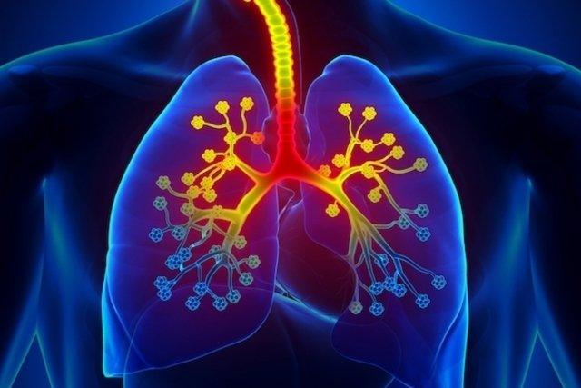 Cómo identificar y tratar el Enfisema Pulmonar