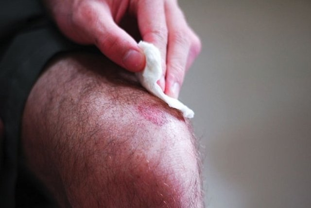 antibiótico para la inflamación de la herida