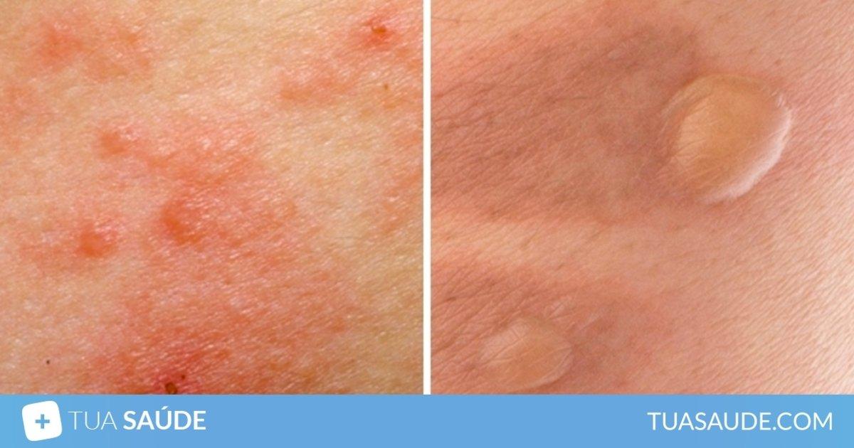 mancha vermelha na pele que parece queimadura