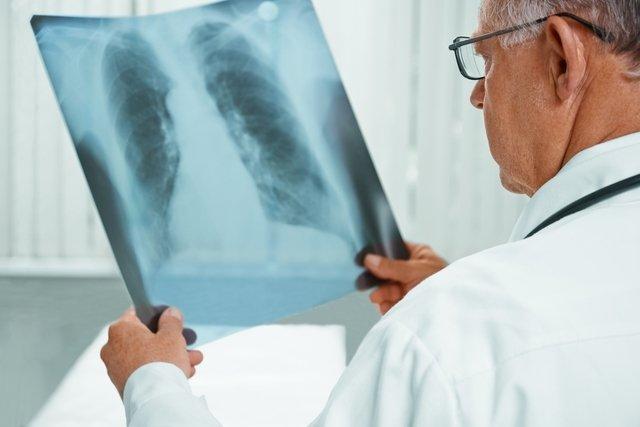 Síndrome de Loeffler: o que é, sintomas, diagnóstico e tratamento