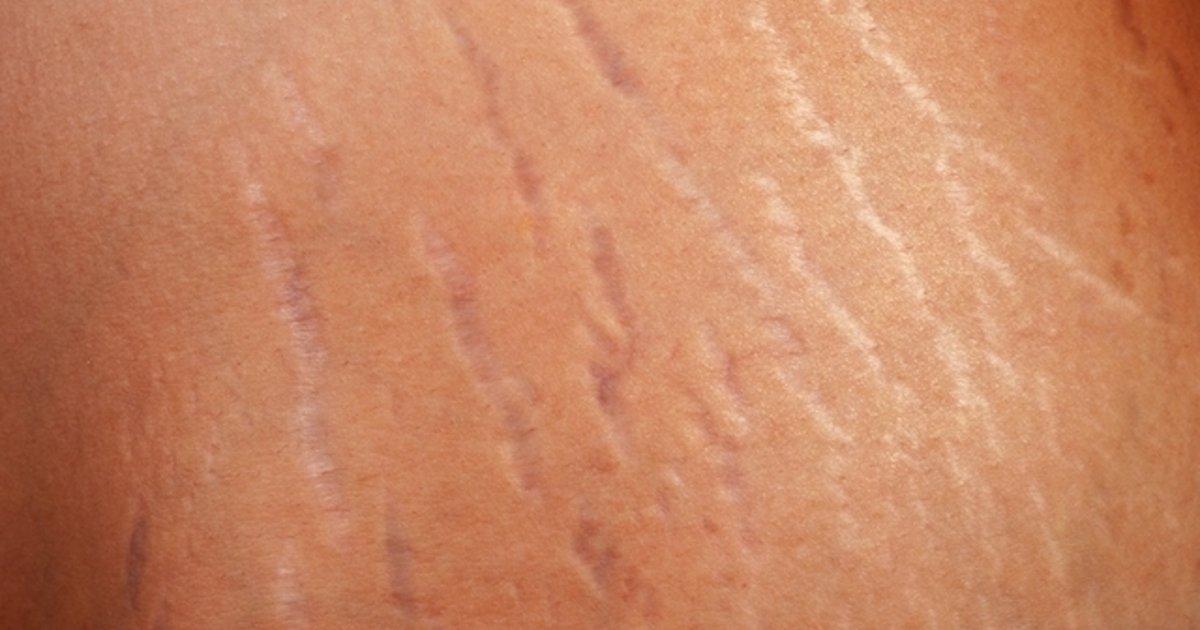 estrias blancas piernas