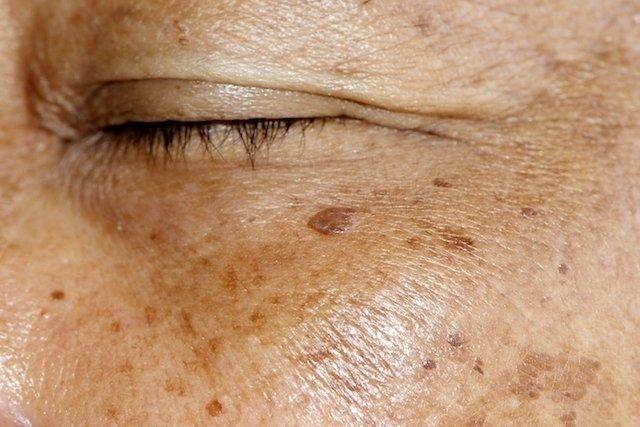 Pomadas para os 7 problemas de pele mais comuns