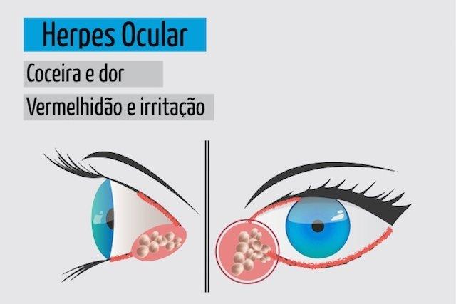 Sintomas de herpes nos olhos