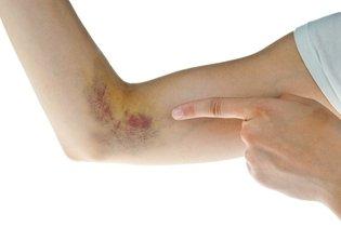 Dicas simples para eliminar hematomas mais rápido