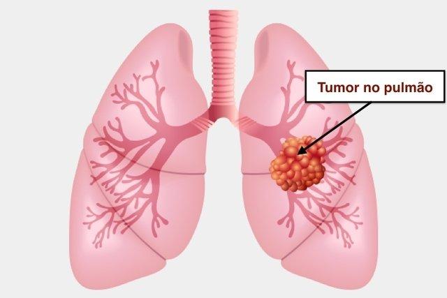 Sintomas de câncer de pulmão