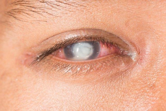 Úlcera ocular