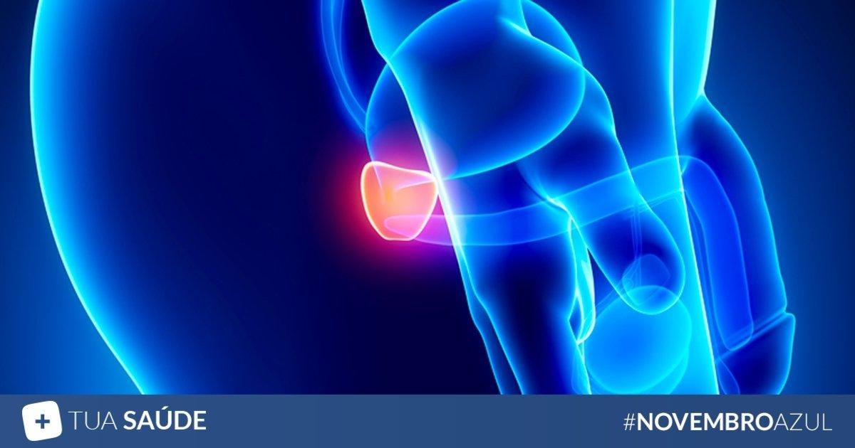cancer de prostata artigo)