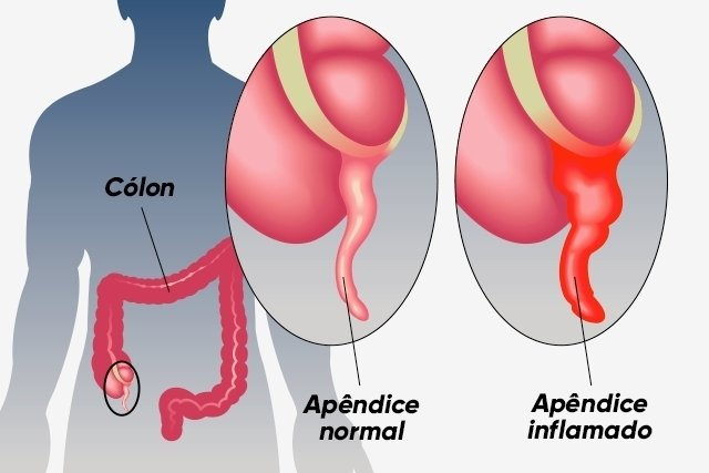 O que é apendicite aguda e principais sintomas