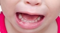 Ointments and medication for canker sores in babies