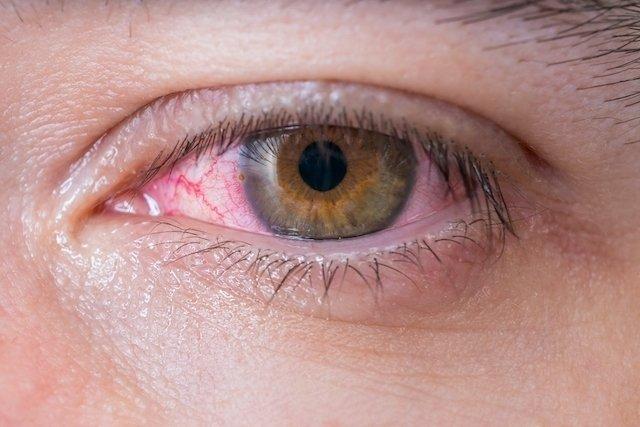 Xeroftalmia: o que é, sintomas, causas e tratamento