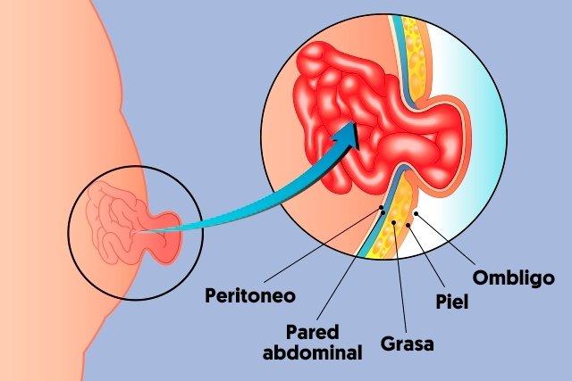 Cómo identificar una hernia umbilical - Tua Saúde