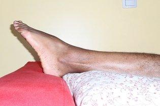 Tratamento de úlcera do dedo do pé