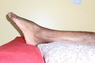 Flebite (Tromboflebite): o que é, sintomas e como é feito o tratamento