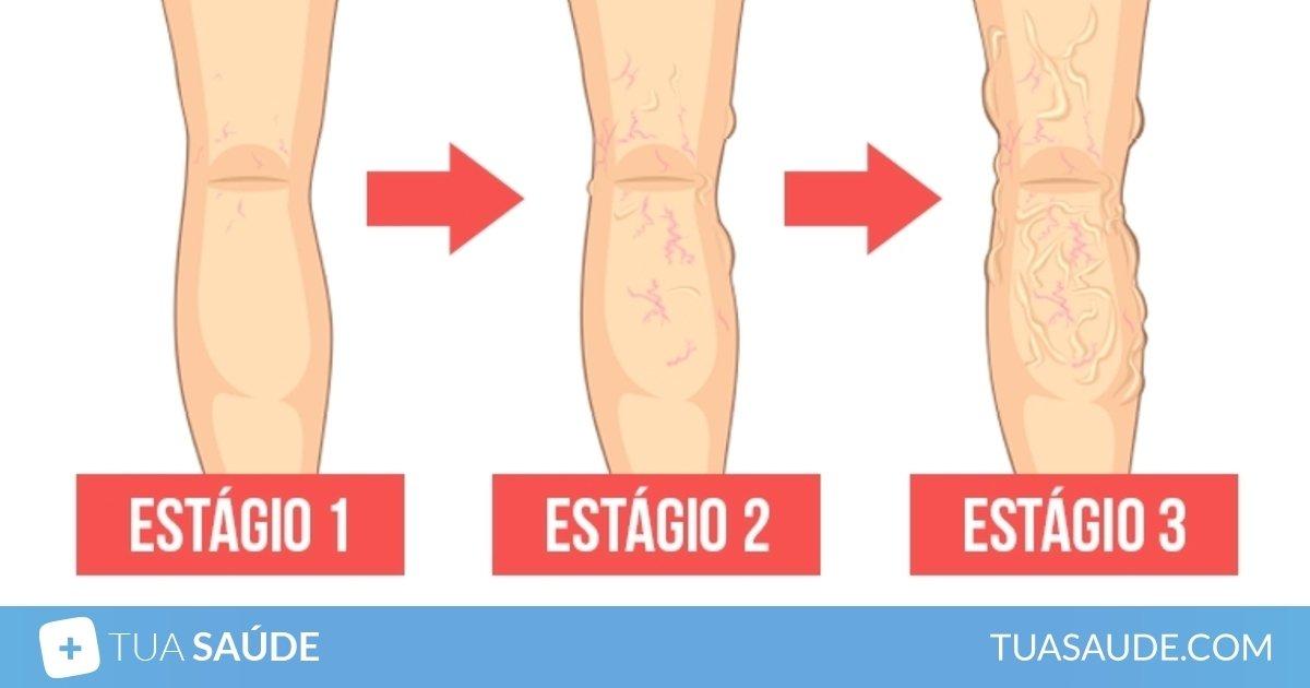 má circulação sanguinea nas pernas tratamento