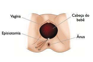 Possíveis ângulos que o obstetra pode optar por fazer na episiotomia