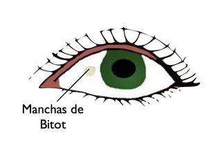 Manchas de Bitot