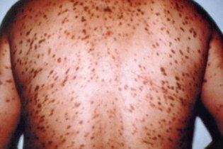 Mastocitose Cutânea Difusa