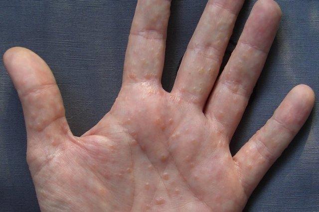 enrojecimiento dedos pies y manos