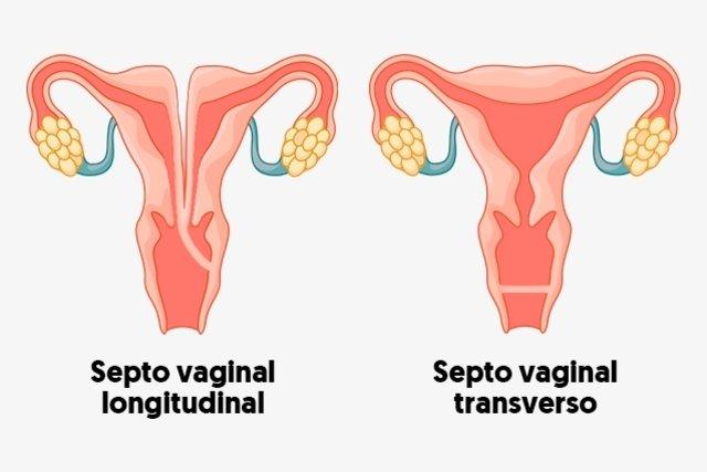 O que é o septo vaginal e como tratar