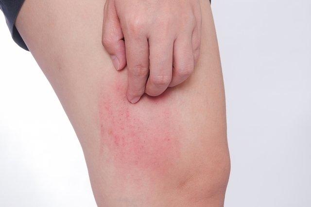 celulitis herida operatoria
