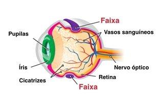 Colocação da faixa cirúrgica no olho