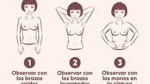 Autoexploración de mama: Cómo realizarlo y señales de alerta