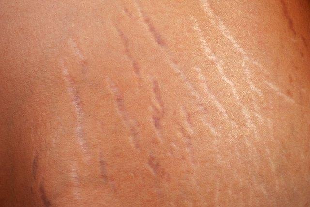 lineas blancas en el brazo
