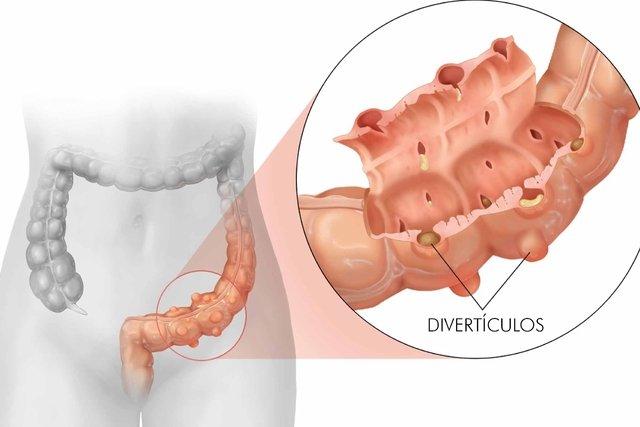 Principais sintomas da diverticulose e como tratar
