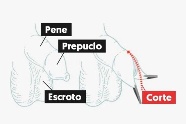 dolor de erección después de la circuncisión
