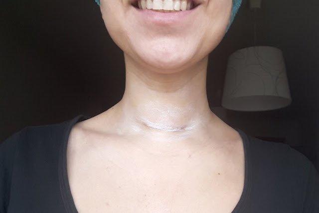 10 dias depois da cirurgia