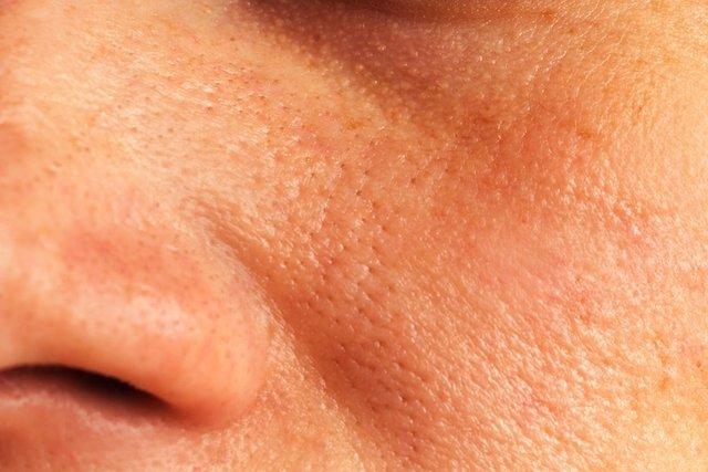 Como fechar os poros abertos do rosto