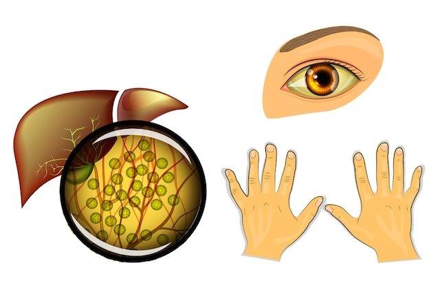 O que pode deixar os Olhos Amarelados?