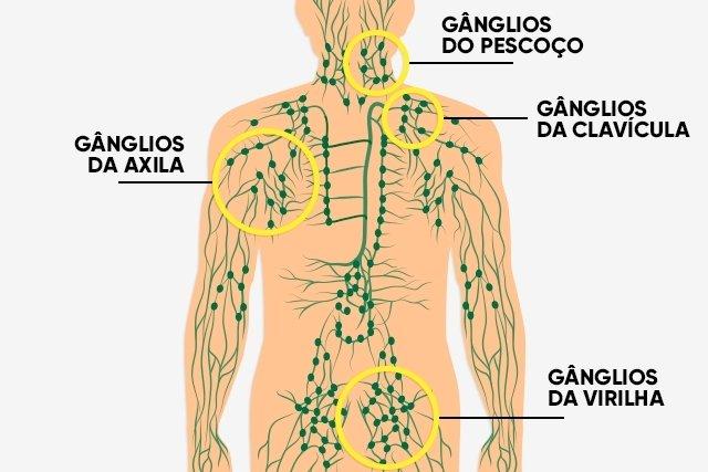 O que são os gânglios linfáticos e onde ficam