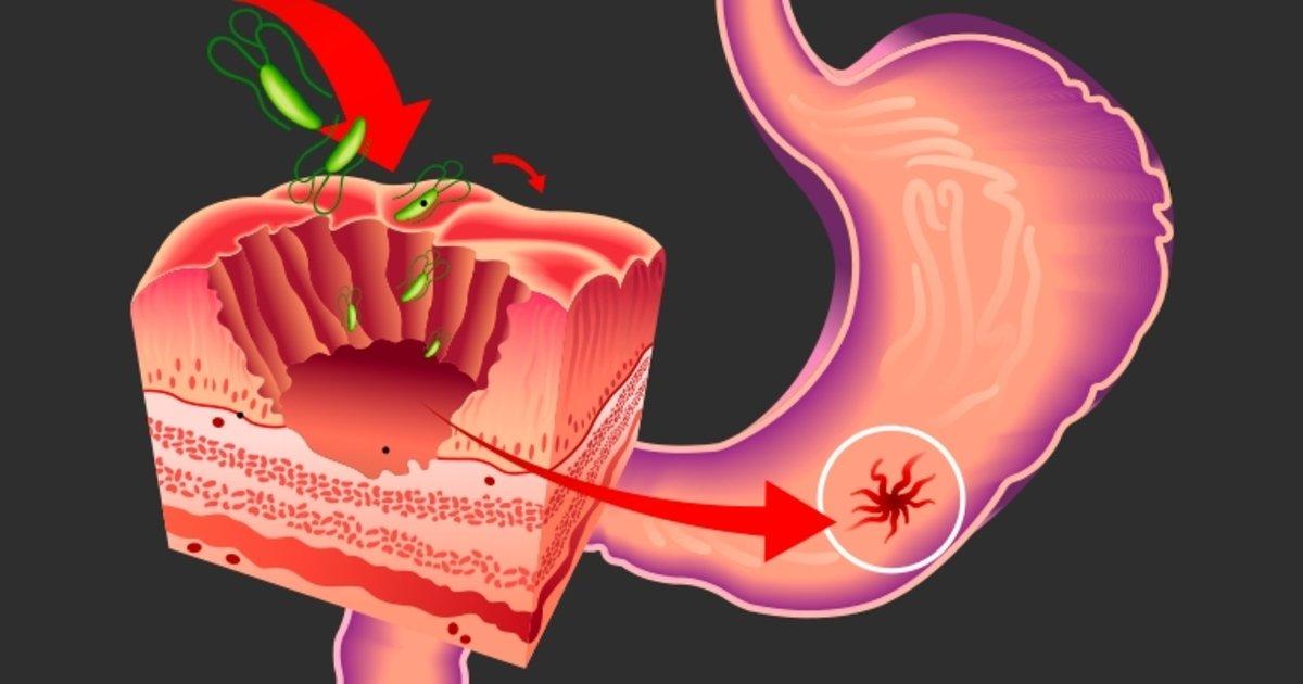 Como puedo curar una ulcera gastrica