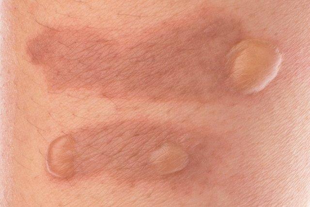 La piel micosis manchas en