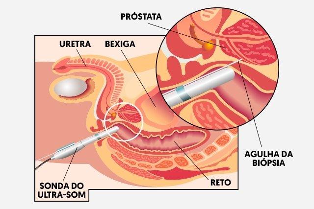 examen de próstata cuando hacerlo